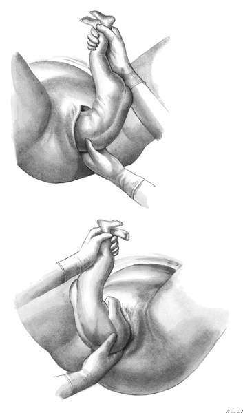 Беременность и роды при тазовом