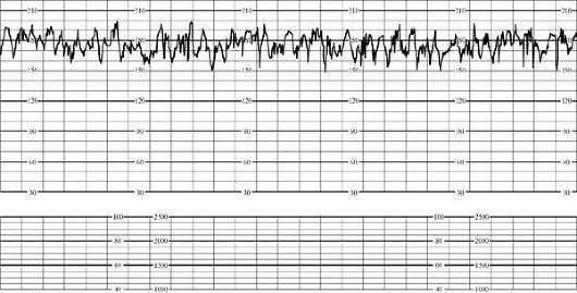 Нестрессовый тест реактивный - f0ba