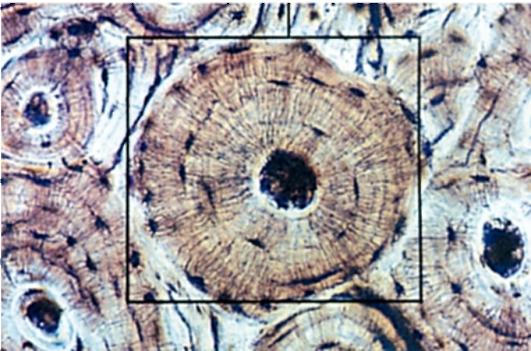 костная ткань фото под микроскопом