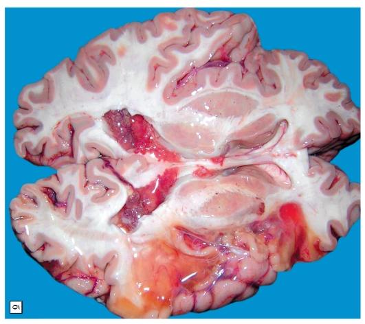 Кровоизлияние в мозг у беременных 8