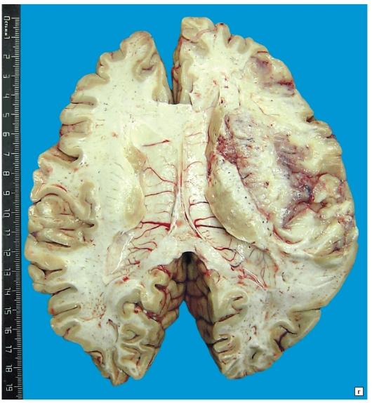 статины и рак
