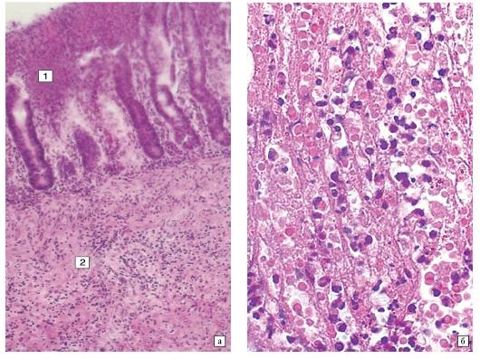 Глава 20 бактериальные инфекции