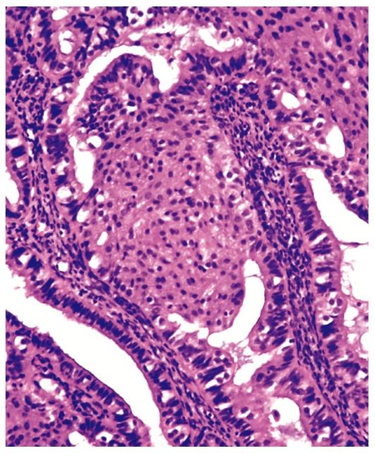 Атипическая гиперплазия предстательной железы