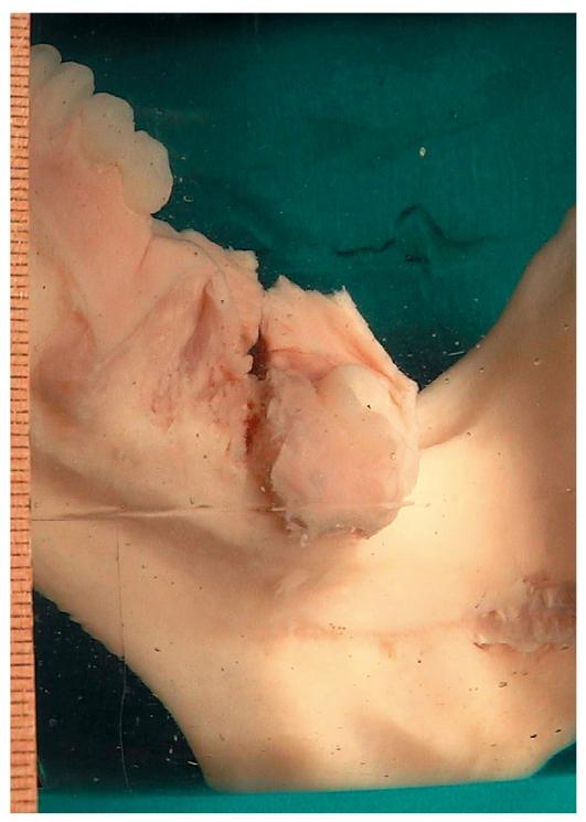остеосаркома фото