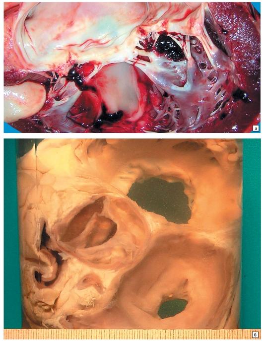 створка клапана сердца фото