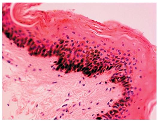 Кожи и слабо выраженный гиперкератоз
