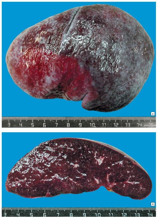 Чечевица при болезнях печени и поджелудочной железы