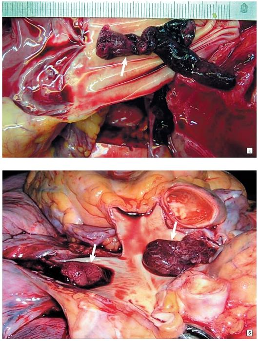 Тромбоэмболия фото