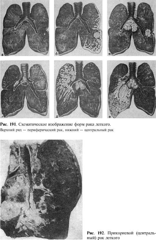 Карцинома бронхиальная