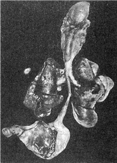 Микрогирия