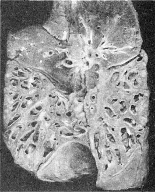 Фиброэластоз