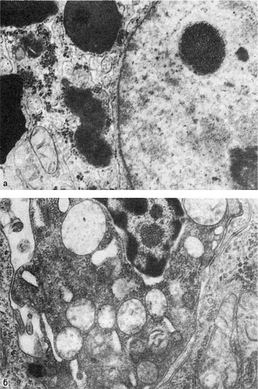Патологическая анатомия струков скачать бесплатно pdf