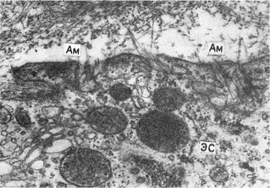 эндоплазматической сети