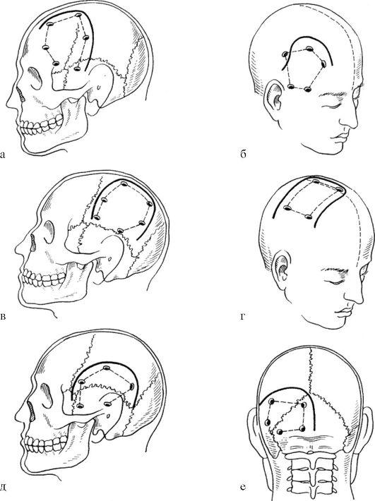 Схема кожных разрезов и