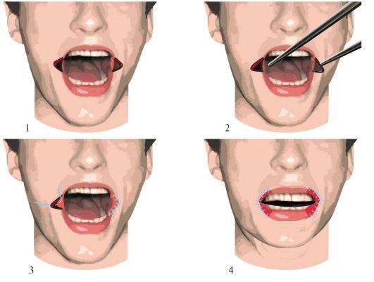 Схема этапов операции при