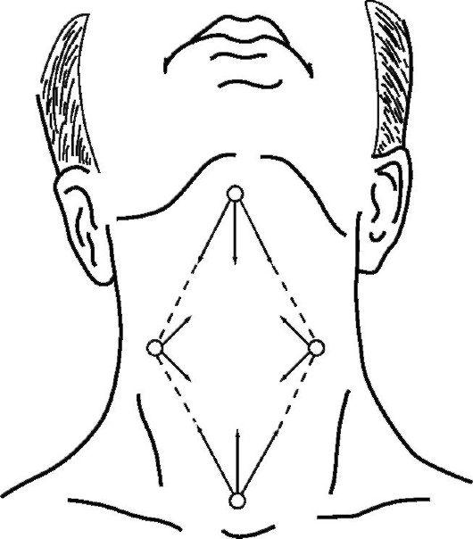Эзофагостомия