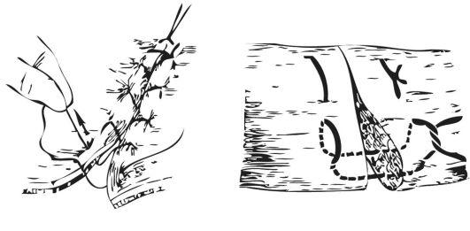 ГЛАВА 7. ОБЩАЯ ХИРУРГИЧЕСКАЯ ТЕХНИКА