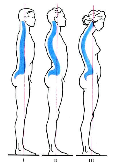 Упражнения при s-образном сколиозе 2 правостороннем сколиозе