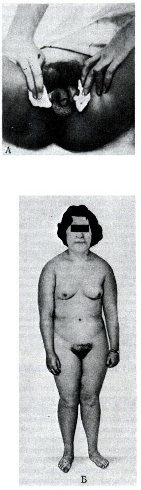 fotografii-anomaliy-klitora-v-mini-trusikah-ero-foto