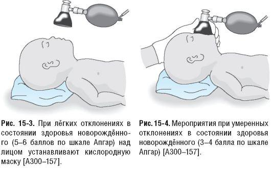 Многоводие гинекология и беременность