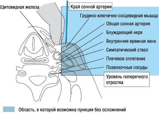 Флеботромбоз глубоких вен нижних конечностей лечение