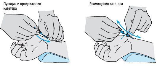 Кривой член в расслабленном состоянии