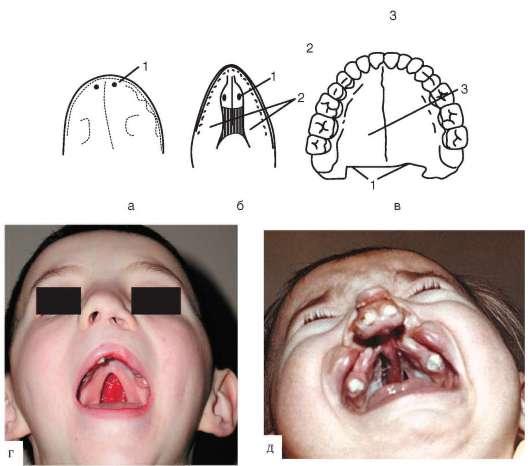 Зубы первоначально расположены