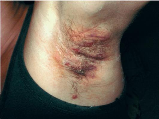 Заболевания связанные с кожей лица