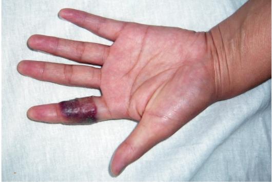 Рожистое воспаление лица у ребенка фото