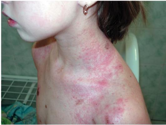 Атопический дерматит лечение нижний новгород