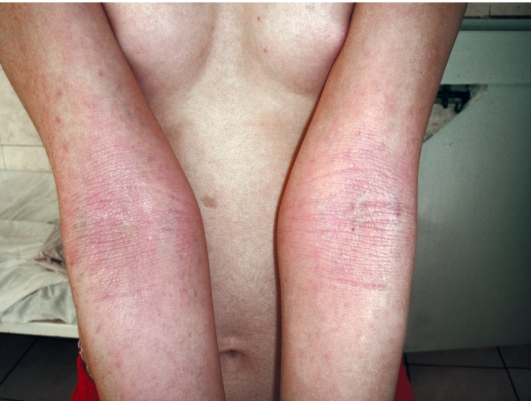 Лечение псориаза калуга