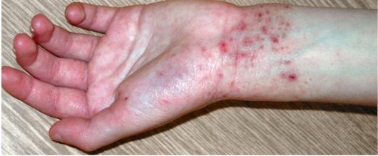 Псориаз на ногтях рук симптомы