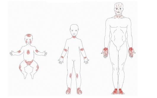 Какие анализы нужно сдавать при атопическом дерматите у детей