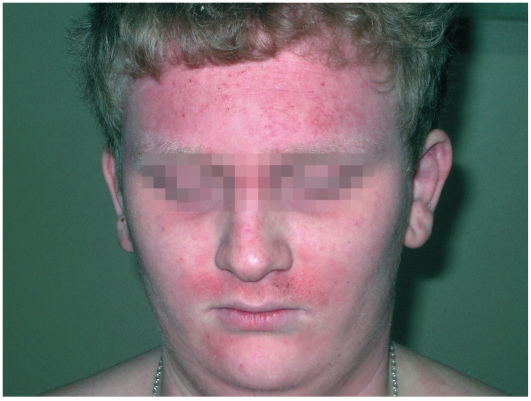 Состав болтушки от атопического дерматита
