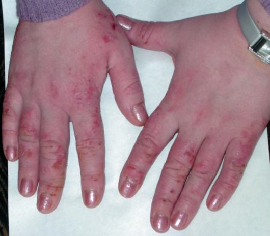 Увлажняющие средства при атопическом дерматите у ребенка