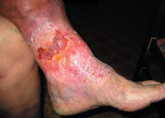 Лечение псориаза отзывы людей