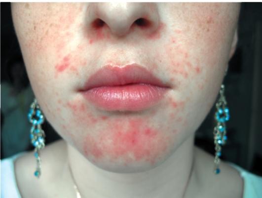 Как избавиться от угрей на лице с помощью желатина