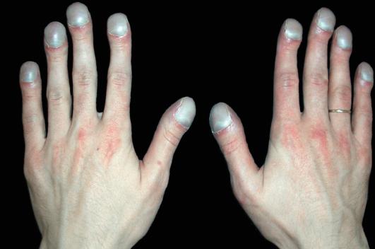 Какие бывают формы ногтей фото