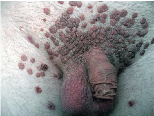 Бородавки на гениталиях от чего