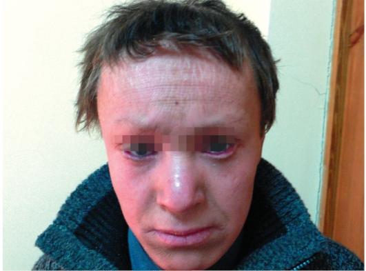 A prosztatitis- kezelés jelei népi jogorvoslatokkal Prostatitis statisztikák Oroszországban