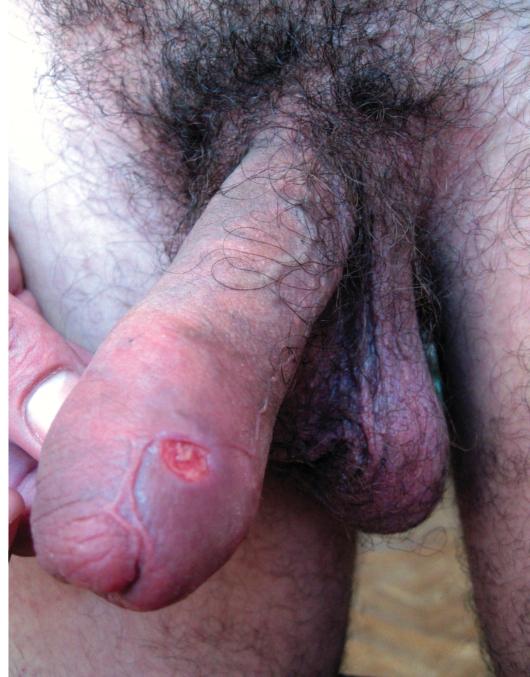 фимоз при сифилисе