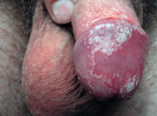 грибок на пенисе