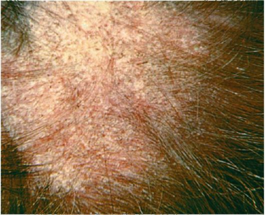 Микроспорум волос
