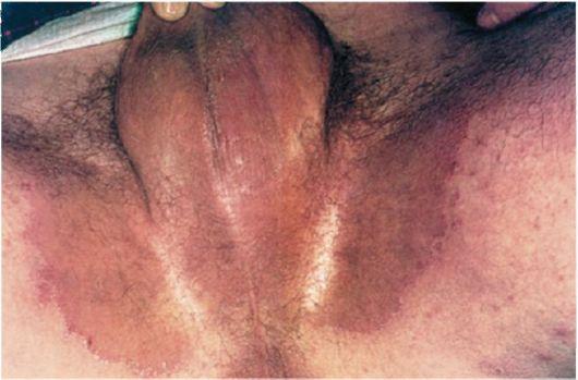 Рис. 32. Паховая эпидермофития