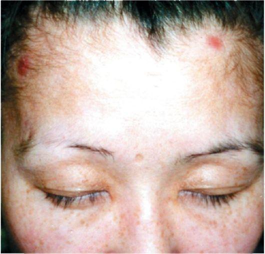 выпадение бровей при сифилисе