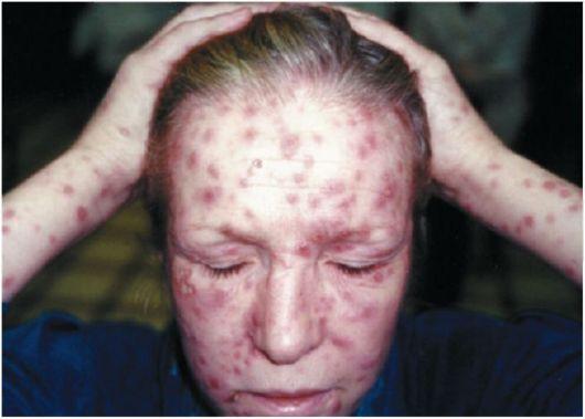 рецидив сифилиса симптомы