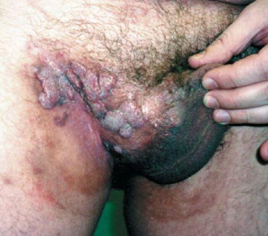 широкие кондиломы при сифилисе