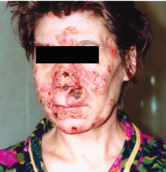 рубцы при третичном сифилисе