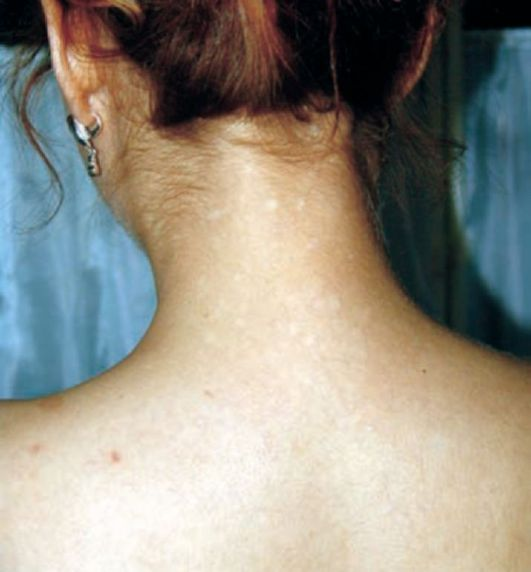 сифилитическая лейкодерма фото