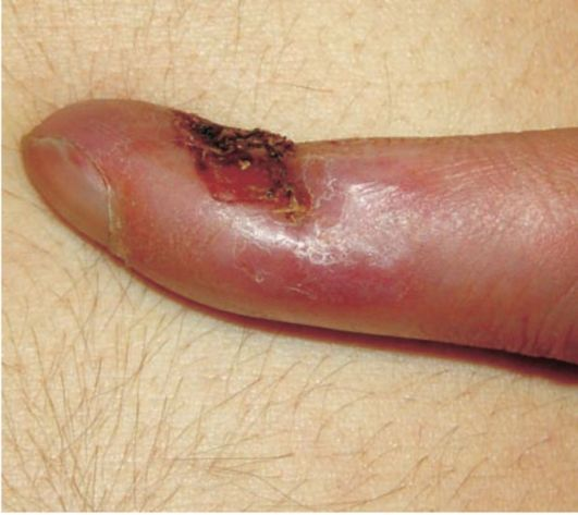 заражение сифилисом у медиков в виде шанкра панариция